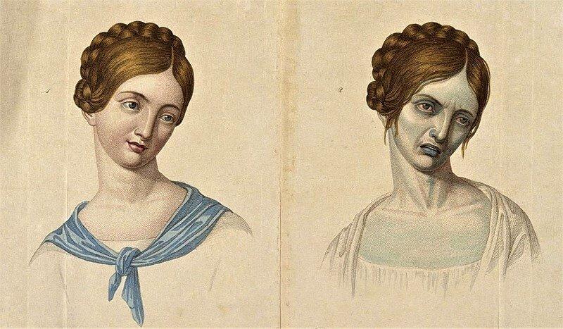 Rysunek przedstawiający zmiany zachodzące u 23-latki chorej na cholerę.